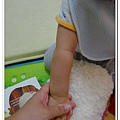 玫瑰疹出疹第五天05271500 (3)