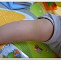 玫瑰疹出疹第五天05271500 (6)