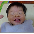 玫瑰疹出疹第五天05271500 (7)