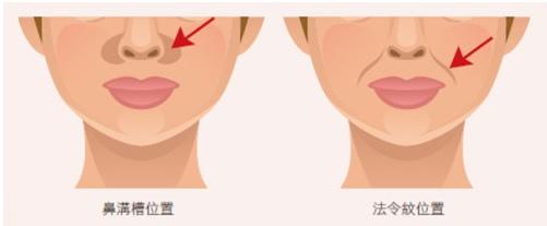 鼻溝槽圖.jpg - 鼻溝槽
