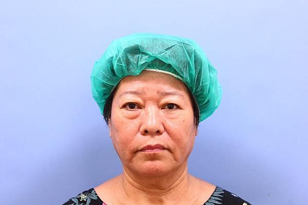 眼袋修皮割雙眼皮術前01.JPG