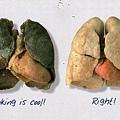 吸菸者的肺.jpg
