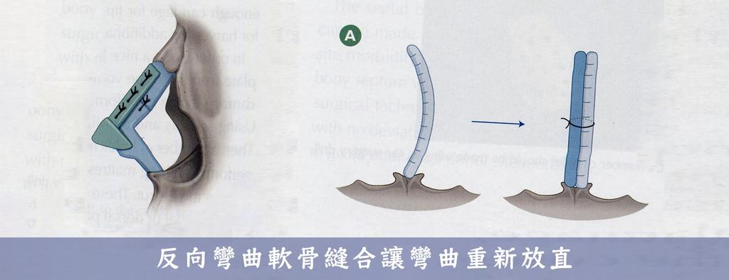07_反向彎曲軟骨縫合.jpg
