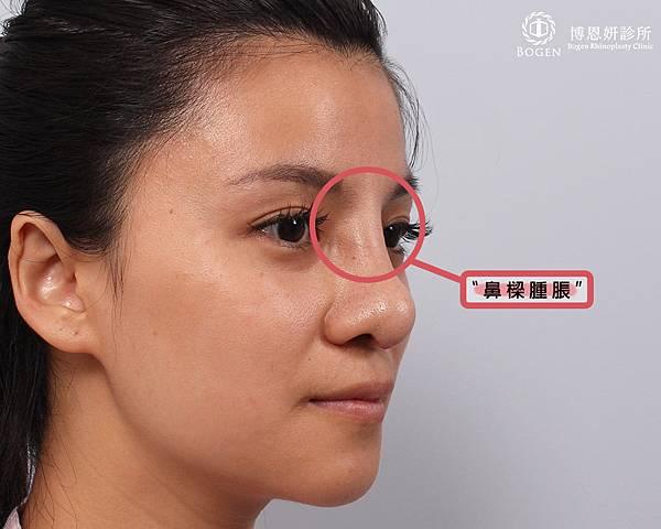 鼻樑腫脹.jpg