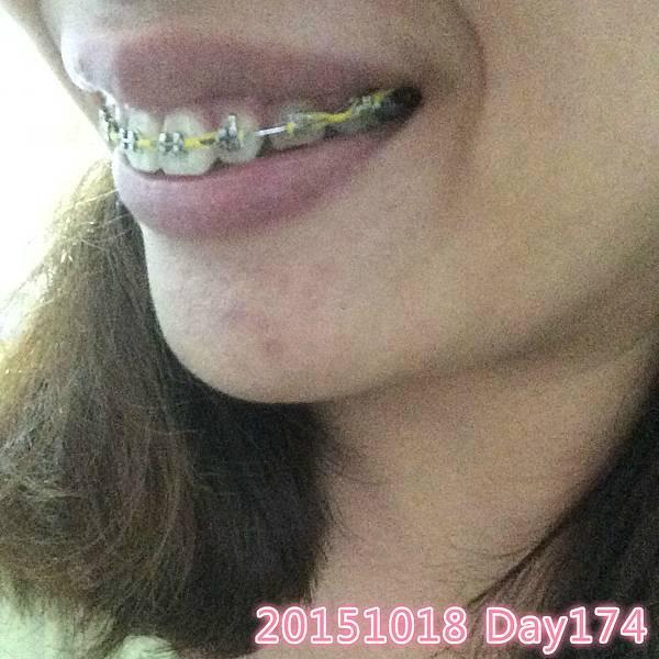 IMG_3218_meitu_36