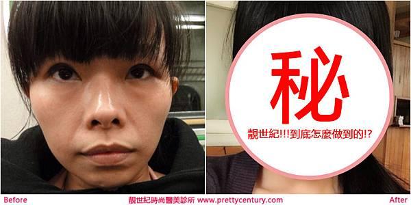 隆乳,隆鼻,韓式隆鼻,自體脂肪隆乳,靚世紀