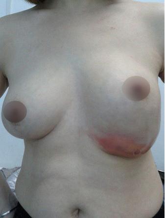 失敗的隆乳手術