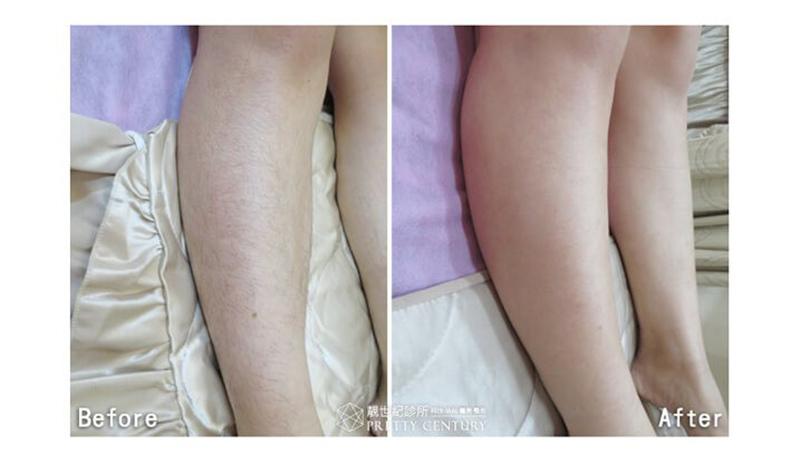 [台南醫美]紫翠玉腿部雷射除毛,根除惱人腿毛,改善膚色黯沉不均及色素沉澱問題,縮小腿部毛孔 靚世紀診所.jpg