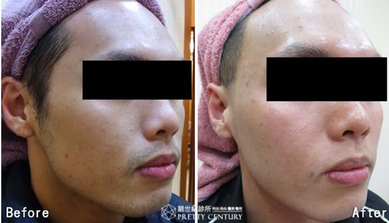 [台中醫美]紫翠玉雷射除毛及除鬍,鬍子鬍渣一網打盡,雷射修整鬍型,還你亮白潔淨的臉龐 靚世紀診所.jpg