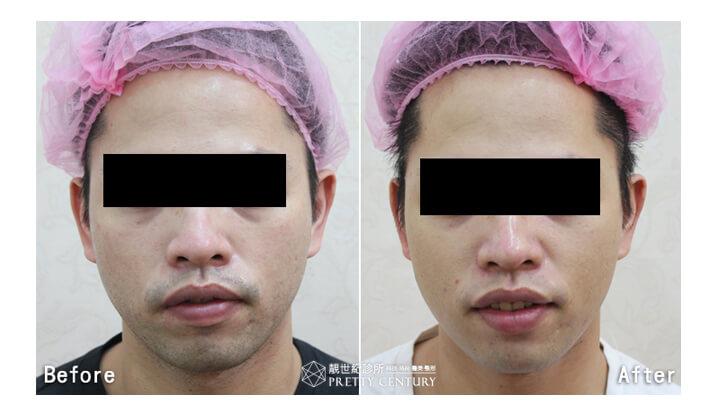 [台南醫美]扭轉男人味刻板印象!紫翠玉雷射去除鬍子、鬍渣,展現乾淨時尚男人味|靚世紀診所.jpg