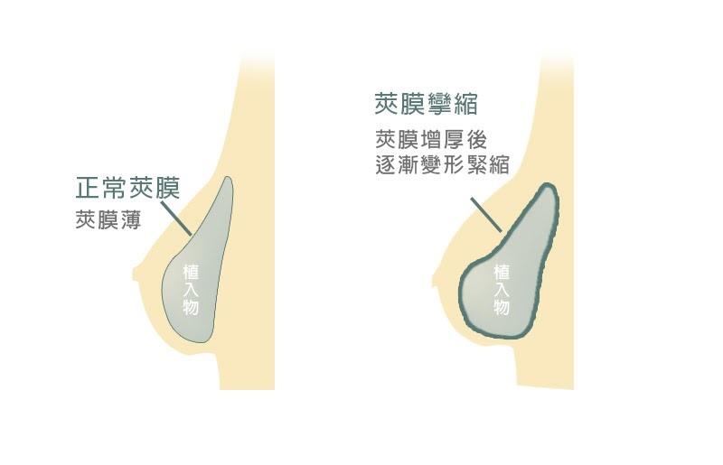 隆乳後正常莢膜與莢膜攣縮差異.jpg