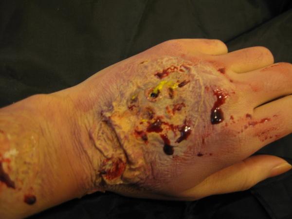 化膿 (8).JPG