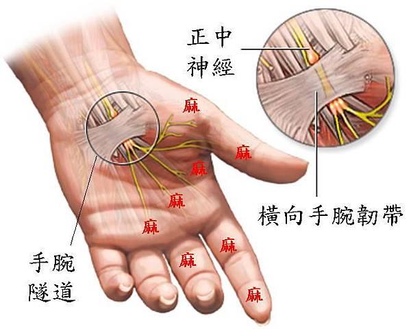 手腕隧道症候群.jpg