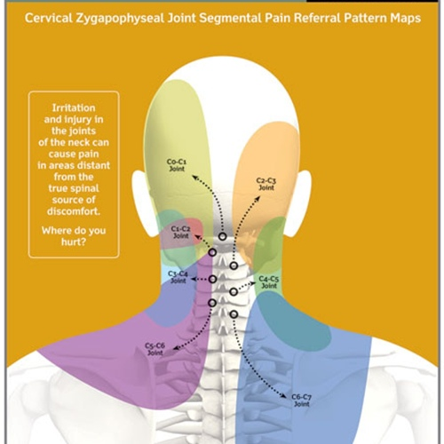 Sources-of-Neck-Pain