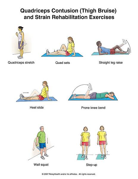 Quadriceps Contusion (Thigh Bruise) and Strain