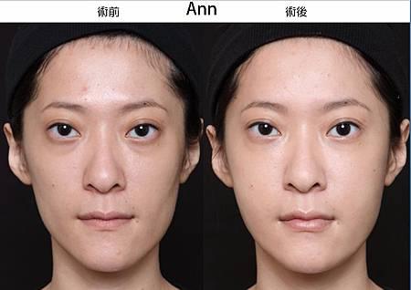 Ann-1