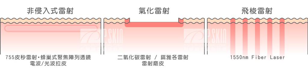 皮秒雷射高雄755皮秒雷射755蜂巢皮秒雷射皮秒雷射凹洞PicoSure飛梭雷射03.jpg