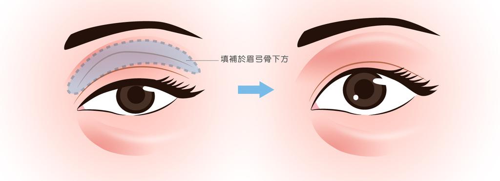 改善眼窩凹陷眼窩凹陷ptt眼窩凹陷玻尿酸費用玻尿酸補眼窩眼皮玻尿酸眼窩凹陷治療02.jpg