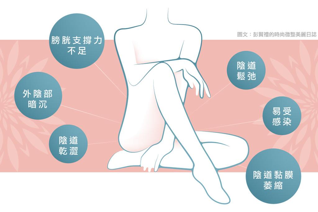 私密處老化私密處緊實手術費用私密處緊緻AcuPulseFemtouch02.jpg