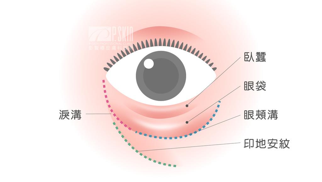 眼袋消除法消除眼袋的方法除眼袋費用眼袋手術除眼袋推薦如何去除03.jpg