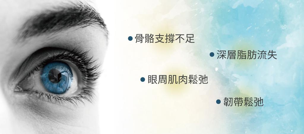 眼袋消除法消除眼袋的方法除眼袋費用眼袋手術除眼袋推薦如何去除02.jpg