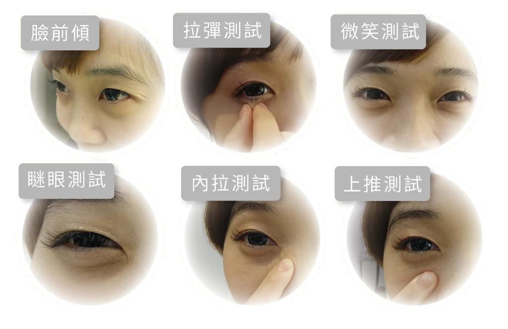 眼袋消除法消除眼袋的方法除眼袋費用眼袋手術除眼袋推薦如何去除04.jpg