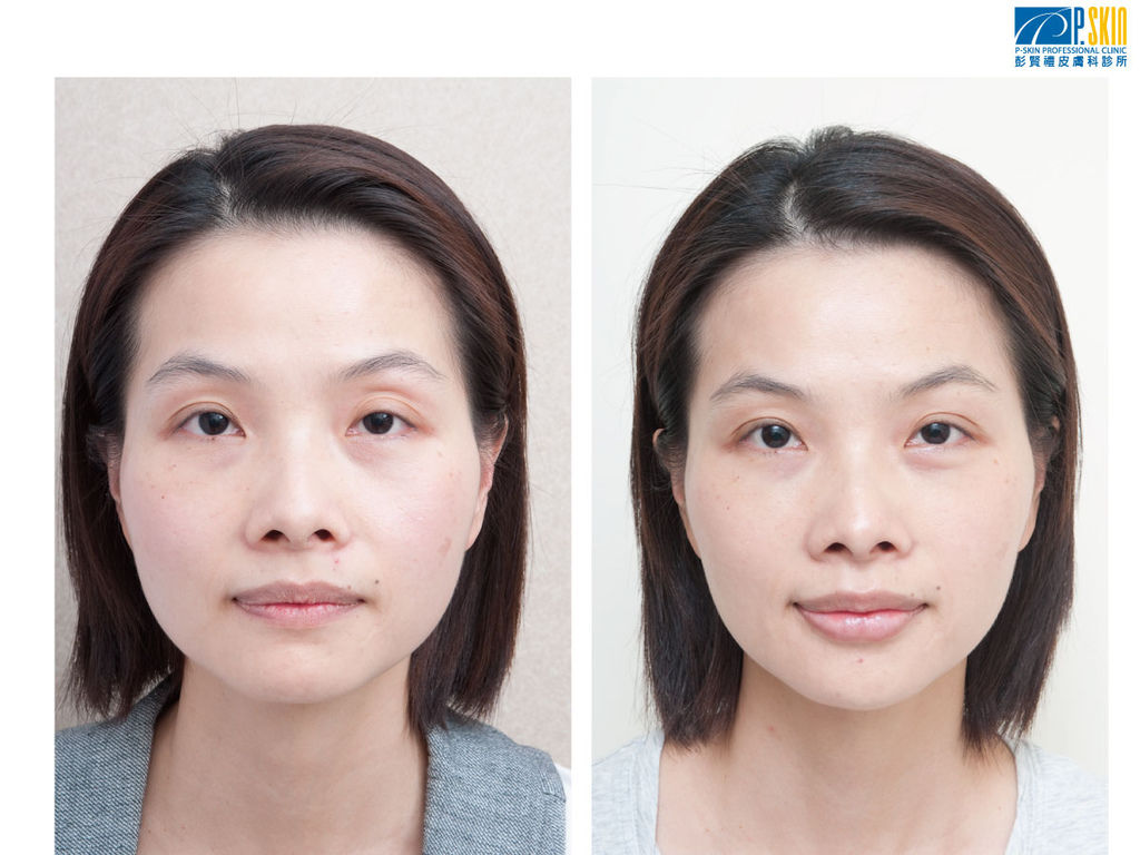 眼袋案例-2.jpg