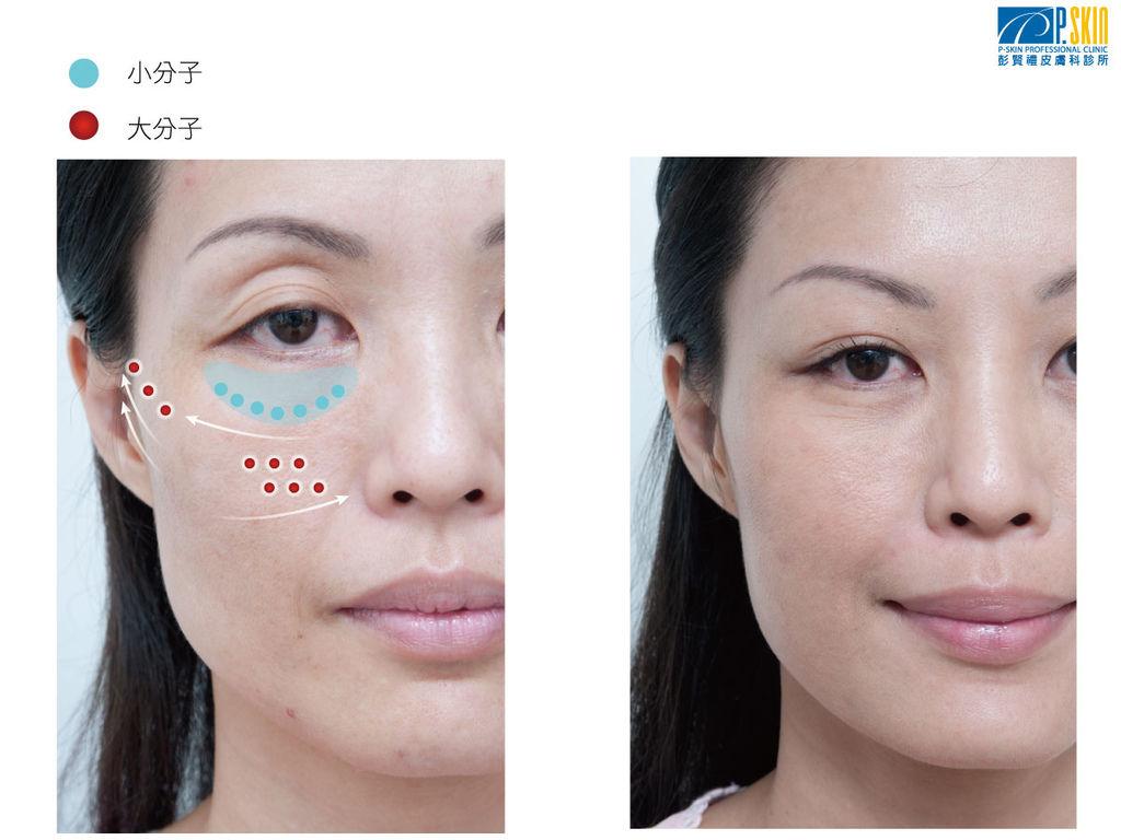 眼袋案例-1.jpg