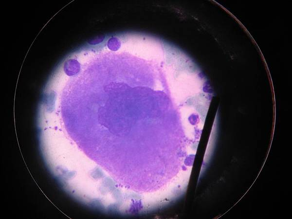 megakaryocyte(1) 400X、細胞超大超大!