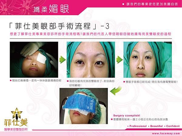 台中縫雙眼皮、割雙眼皮|菲仕美診所12