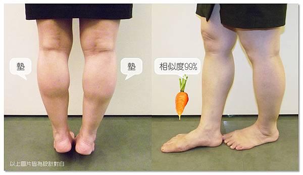 台中纖纖美腿瘦小腿|菲仕美診所03