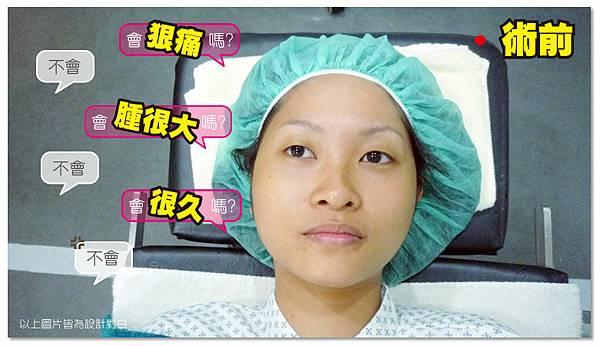 台中雙眼皮手術|菲仕美07