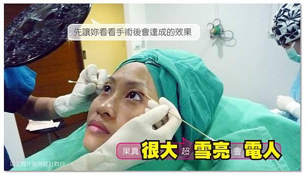 台中雙眼皮手術|菲仕美08