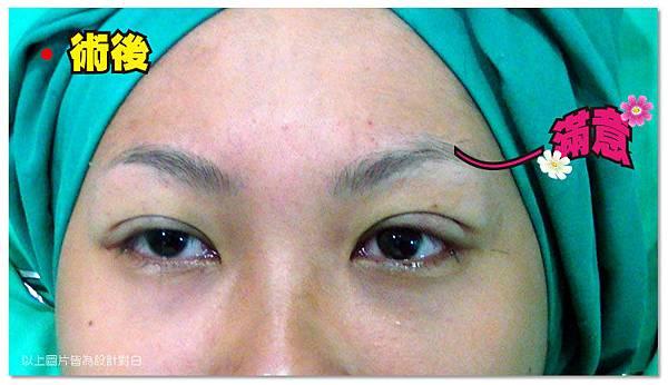 台中雙眼皮手術|菲仕美10
