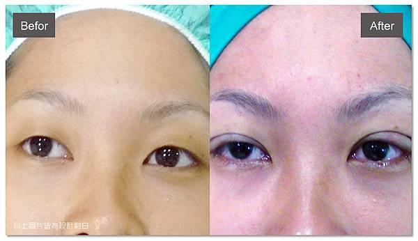 台中雙眼皮手術|菲仕美11