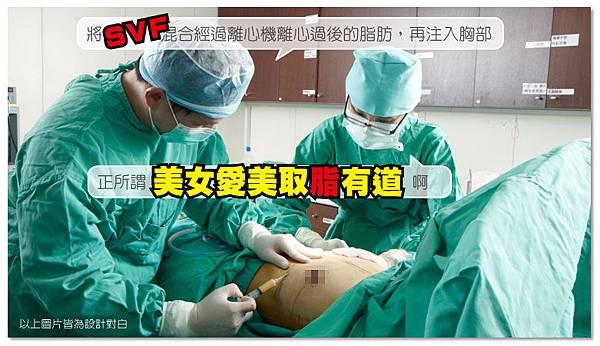 台中自體脂肪移植|菲仕美09