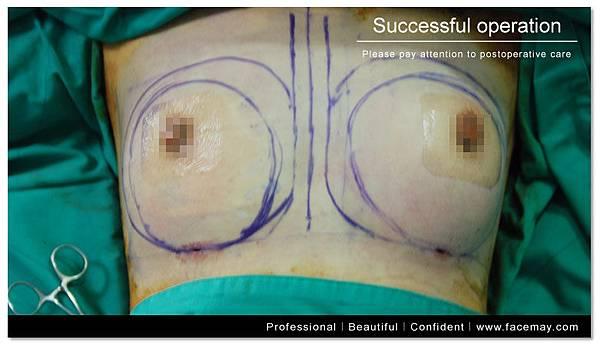 台中自體脂肪移植|菲仕美診所10