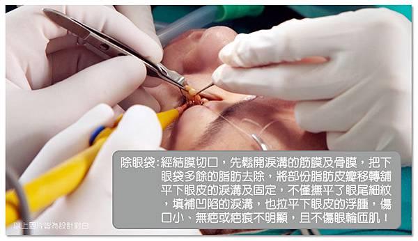 台中眼袋|台中眼袋手術05