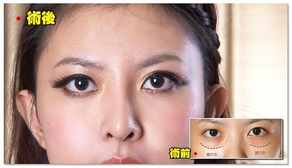 台中眼袋|台中眼袋手術06