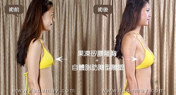 台中隆乳|台中隆乳手術02