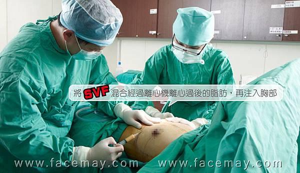 台中隆乳|台中隆乳手術04