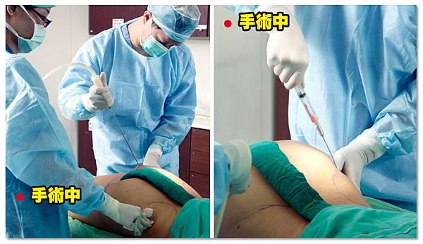 台中抽脂|台中抽脂手術04