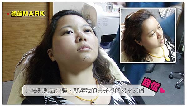 台中隆鼻|台中微晶瓷隆鼻02