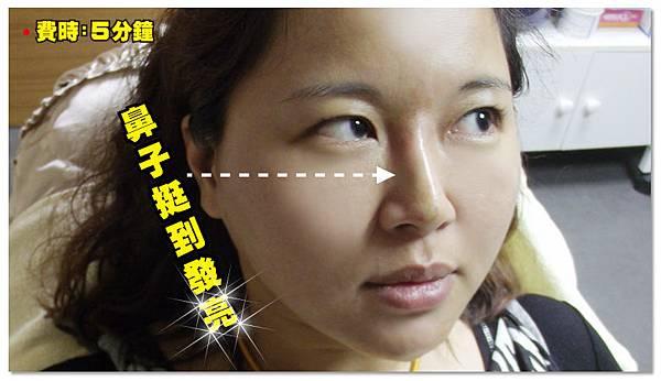台中隆鼻|台中微晶瓷隆鼻04