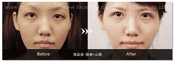 台中隆鼻|台中微晶瓷隆鼻06