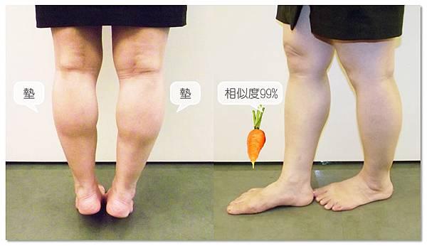 台中纖纖美腿瘦小腿|台中瘦小腿|台中肉毒桿菌瘦小腿01