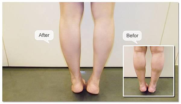 台中纖纖美腿瘦小腿|台中瘦小腿|台中肉毒桿菌瘦小腿02
