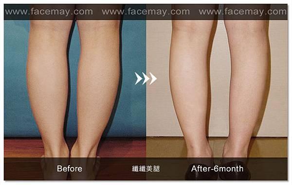 台中纖纖美腿瘦小腿|台中瘦小腿|台中肉毒桿菌瘦小腿09