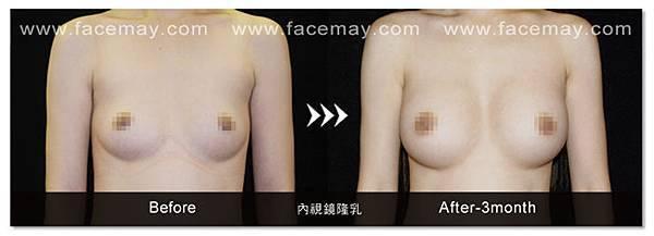 內視鏡隆乳-1