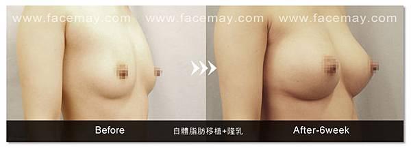 內視鏡隆乳-4